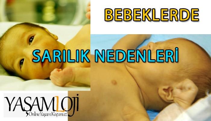 bebeklerde sarılık nedenleri