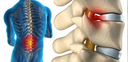 bel fıtığı ağrısı nasıl geçer bel ağrısı, bel fıtığı tedavisi, bel tutulması, nasıl geçer, ne iyi gelir Bel Tutulması Ağrısı Nasıl Geçer ve Bel Fıtığı Tedavisi bel fitigi agrisi nasil gecer tedavi