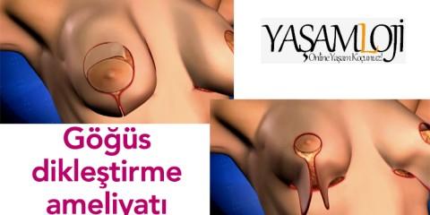 göğüs meme dikleştirme ameliyatı