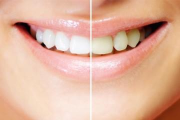 diş beyazlatma yöntemleri nelerdir