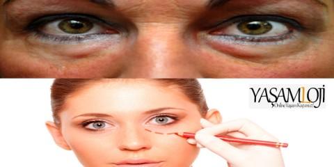 göz altı torbaları neden oluşur nasıl geçer