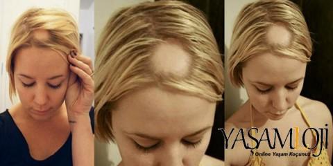 saçkıran nedir tedavisi belirtileri