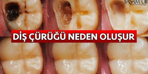 diş çürükleri neden oluşur