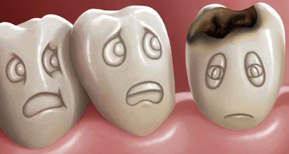 diş sağlığı ve bakımı  Diş Sağlığı ve Bakımı, Dişler Neden Çürür dis sagligi bakimi curukler